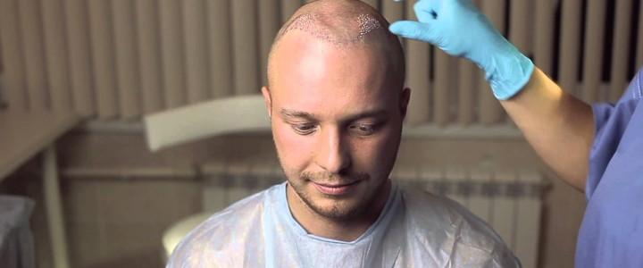 Андрогенное облысение у мужчин и женщин