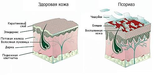 Чешуйчатый лишай или псориаз волосистой части головы