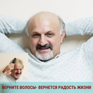 Мужская система замещения волос при облысении