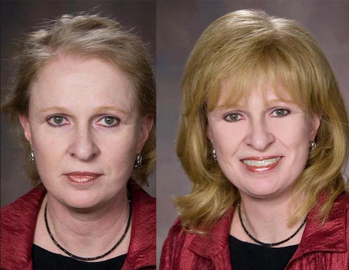 Женская система замещения волос при диффузной алопеции. До и после