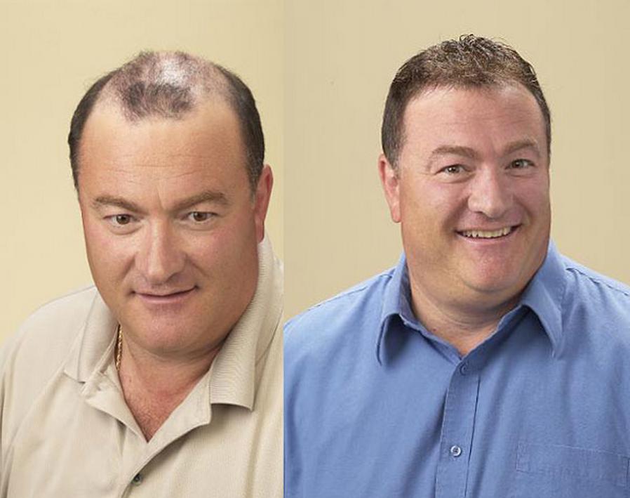 результат после установки системы замещения волос у мужчины при частичном облысении