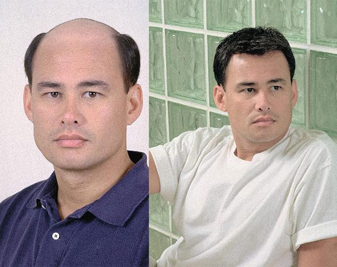 Мужчина восточной внешности в системе замещения волос. До и после