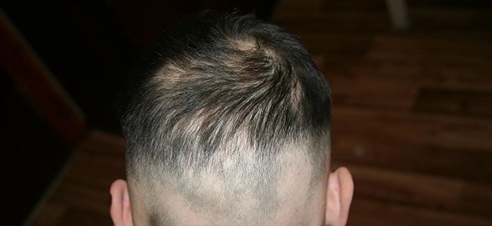 Действенное лечение очаговой алопеции у мужчин