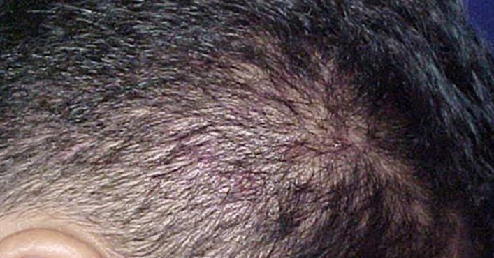 Основные причины появления себорейной алопеции у мужчин