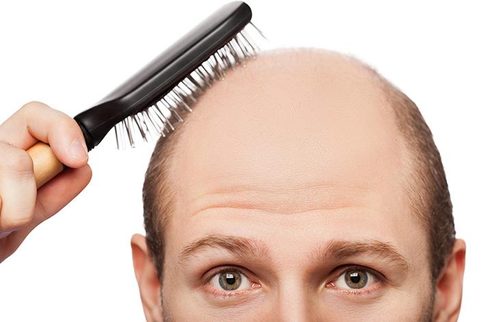 Если вовремя не начать лечение диффузной алопеции, то мужчина рискует остаться без волос