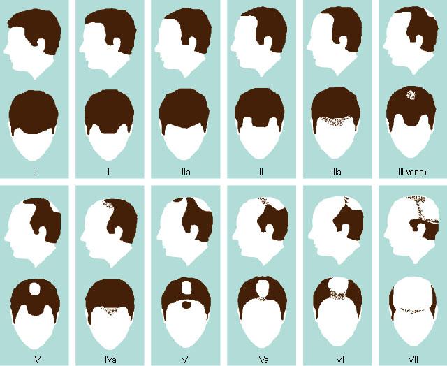 какие препараты пить для роста волос