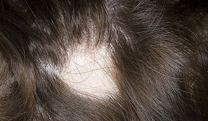ochagovaya-alopetsiya-y-detei-640x427