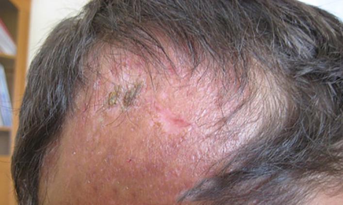 Так выглядит кожа головы на последних стадиях рубцовой алопеции