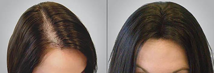Так выглядят волосы после лечения диффузной алопеции