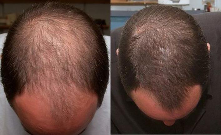 Самые первые признаки андрогенной алопеции - поредение волос