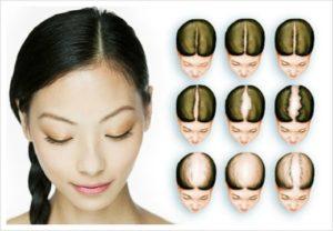 Виды диффузного выпадения волос