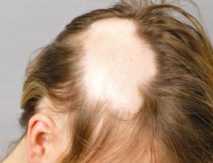 Витамины активного роста волос