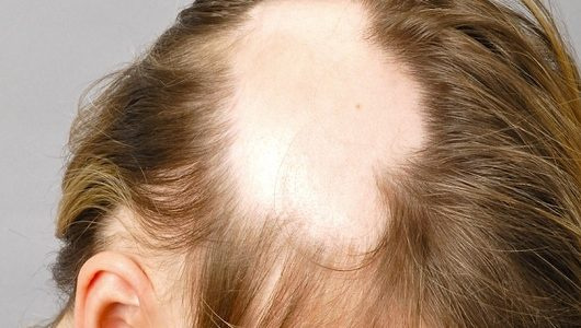 Очаговое выпадение волос у женщин: причины возникновения и лечение