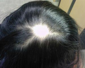 Креатин для восстановления волос