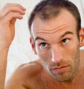 Выпадение волос у мужчин: причины и лечение