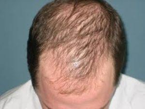 Причины раннего выпадения волос у мужчин