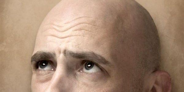Норма выпадения волос у мужчин