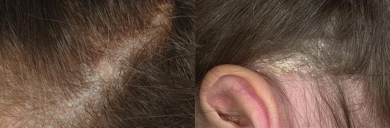 Выпадение волос у детей из-за себореи или дерматита