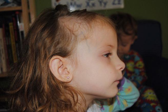 У мальчика 6 лет выпадают волосы