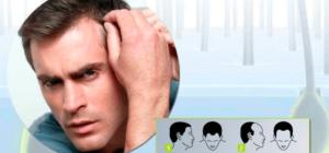 Причины и лечение облысения