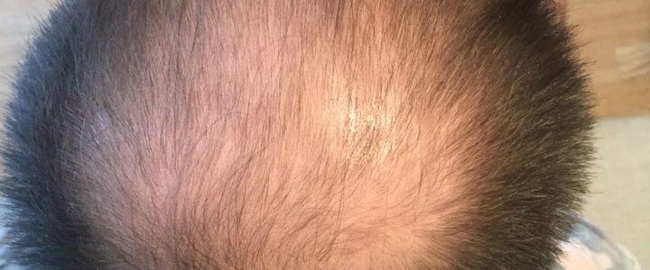 Руководство потребителя системы замещения  волос