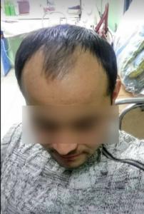 Раннее выпадение волос у мужчин