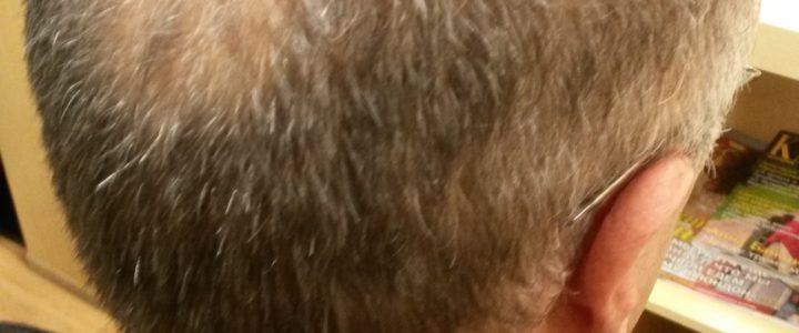 Почему мужчины так не любят лысеть?