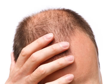 rp_What-are-Scaring-and-Non-scarring-Alopecia.jpg
