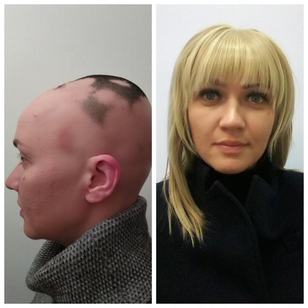 Женская система волос средней длины при поредении позволит полностью восстановить прическу