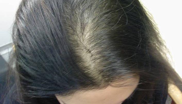 Первые причины гнездовой алопеции у детей - поредение волос на участке, напоминающем  гнездо