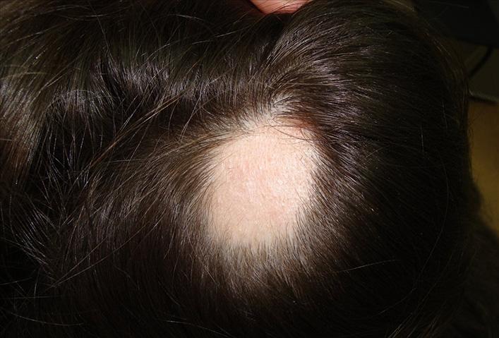 Первые проявления очаговой алопеции на голове