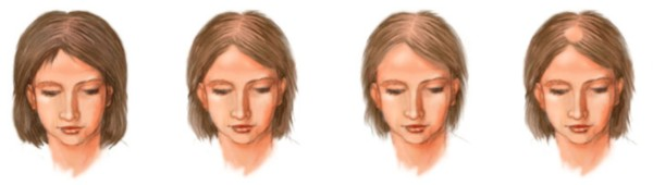 Как прогрессирует андрогенное выпадение волос
