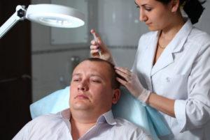 Как лечить облысение у мужчин